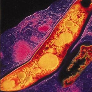 Bacteria responsable de la tuberculosis