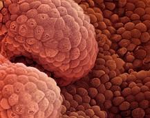 cáncerprostata