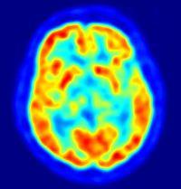 cerebro estres