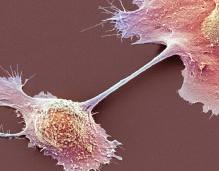 cáncer pancreas