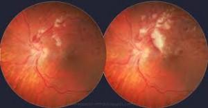 trombosis venosa