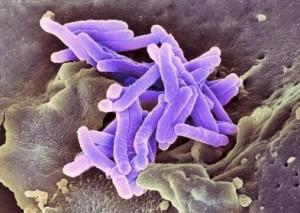 bacilo tuberculosis