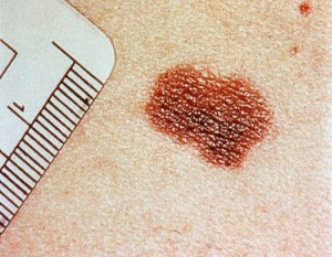 melanoma-2