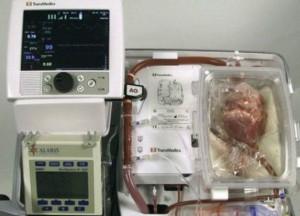 transplante_corazon_624x351_transmedics