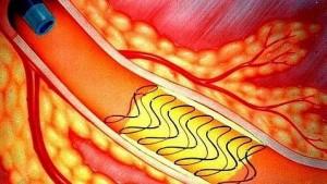 ictus-stent--478x270