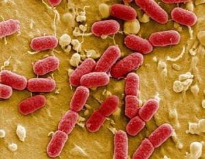 bacteria-ecoli