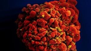 HIV-virus--620x349