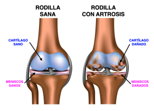 Artrosisrodilla
