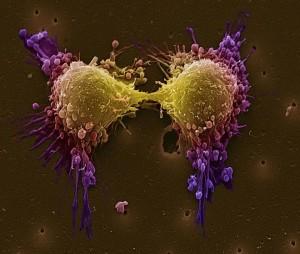 cancer piel