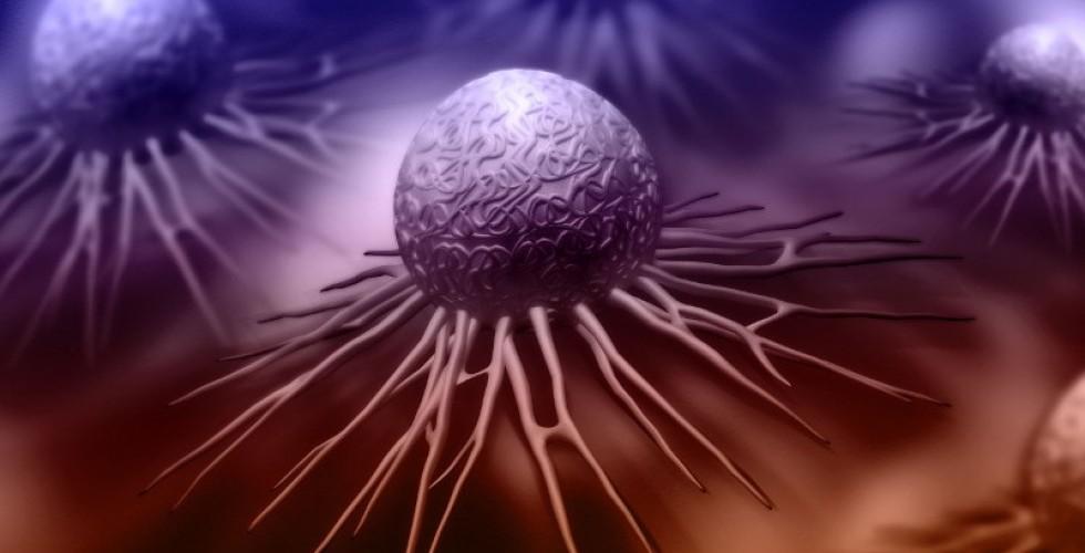 cancer-de-cervix