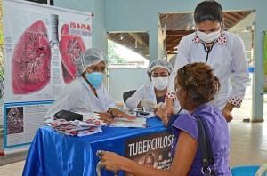 tuberculose-brasil