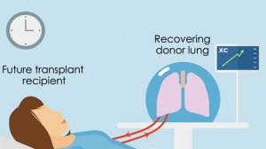 pulmon.jpg-keyE--620x349@abc
