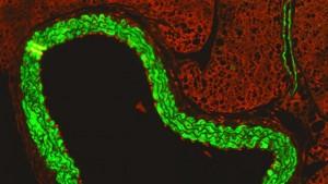celulas inmunitarias activadas