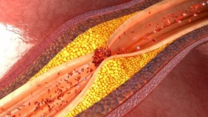 16/02/2018 Aterosclerosis, ateroma, arteria obstruida. El músculo del corazón recibe la sangre a través de las arterias coronarias, lo que le permite nutrirse de oxígeno y de otros componentes necesarios para su funcionamiento. No obstante, estas arterias pueden enfermar y la primera causa de ello es la aterosclerosis. ESPAÑA EUROPA MADRID SALUD GETTY IMAGES/ISTOCKPHOTO / 7ACTIVESTUDIO