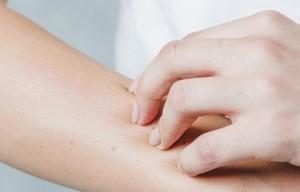 enfermedades-piel